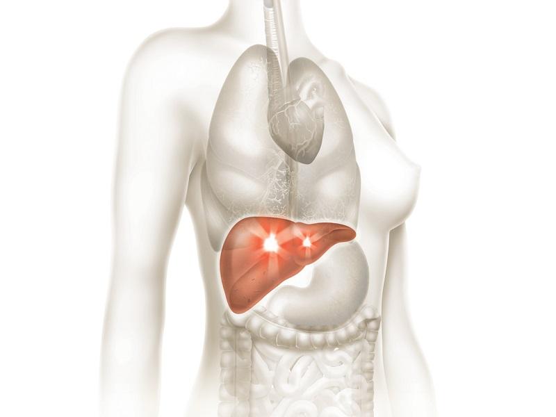 Hepatite: conheça os sintomas e saiba se prevenir
