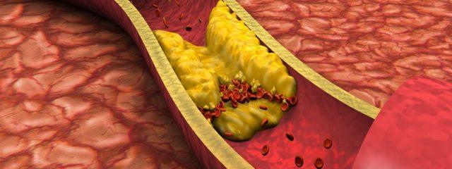 Colesterol HDL e LDL: você sabe a diferença?