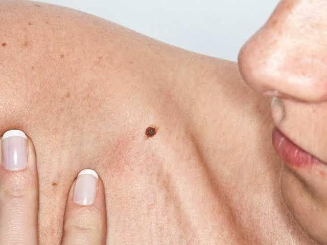 Saiba como se proteger contra o câncer de pele