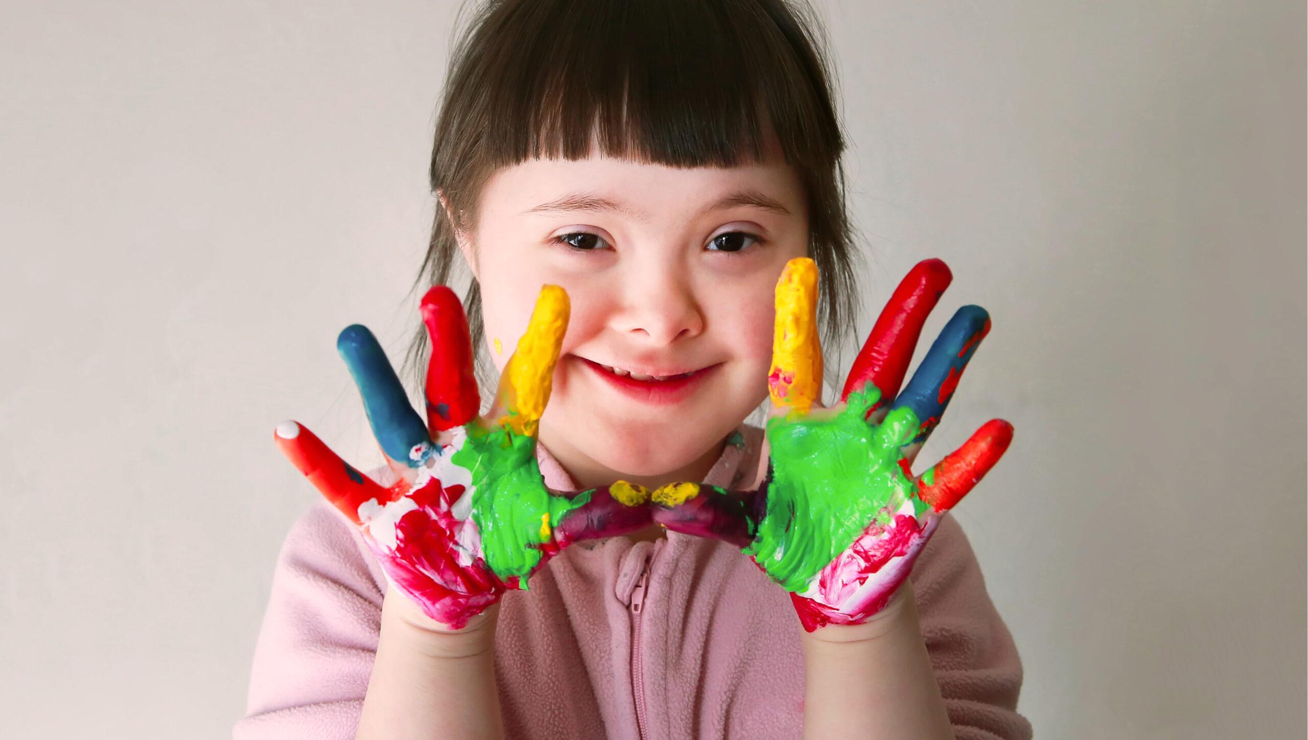 Você sabe como a Síndrome de Down é diagnosticada?